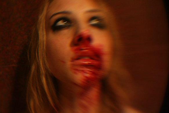 Battered girl from Manson's video